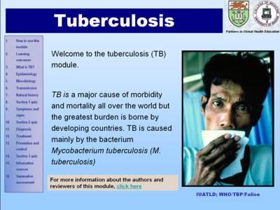 TB module.